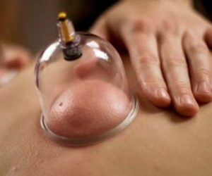 dry-cupping